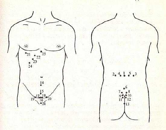 Схема постановки пиявок при различных заболеваниях