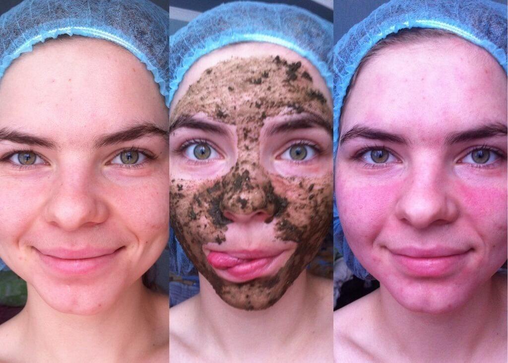 Как сделать чтобы не было красноты на лице