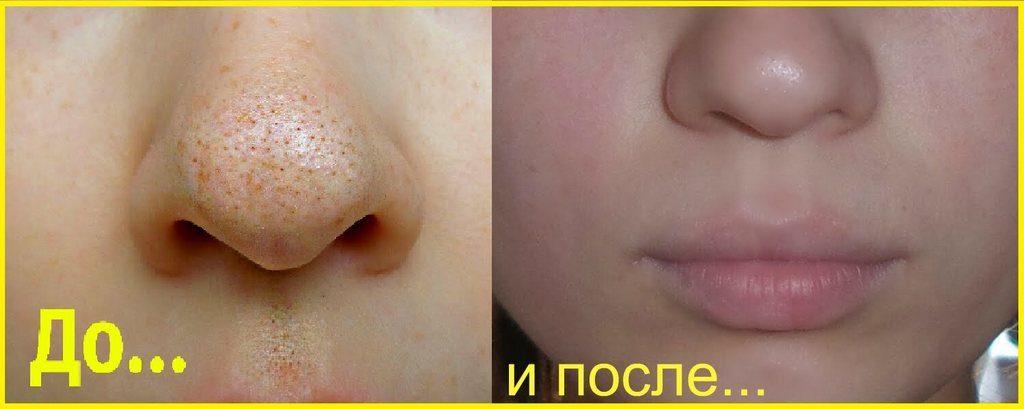 Empty nose