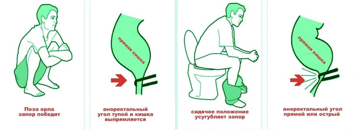 Зарядка для беременных чтобы сходить в туалет 54