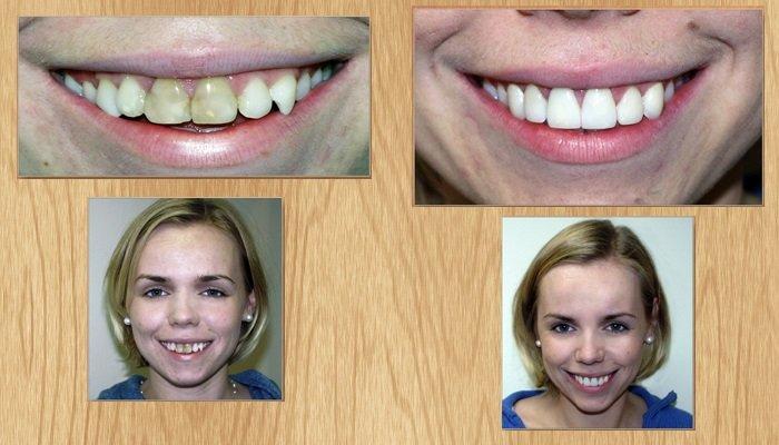 Как сделать зубы светлей 816
