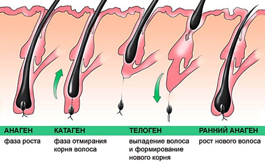 Выпадение волос  симптомы лечение профилактика причины