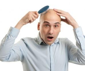 Як зупинити випадіння волосся у чоловіків: різке, осередкове, випадання плямами