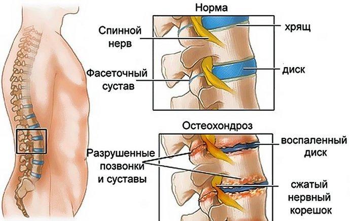 Лечение остеохондроза и радикулита поясничного отдела позвоночника