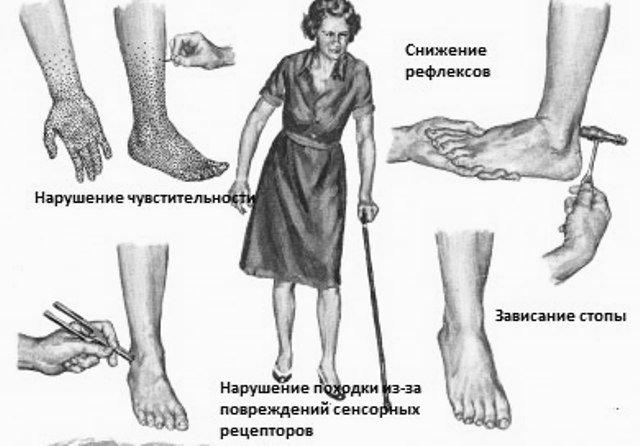 Сенсорная полинейропатия верхних и нижних конечностей