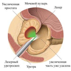 Хронический простатит хронический везикулит лечение