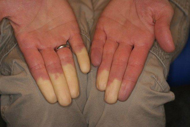 Больной палец на руке что делать 172