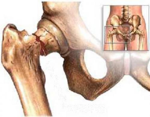 Как обезболить тазобедренный сустав при остеопорозе