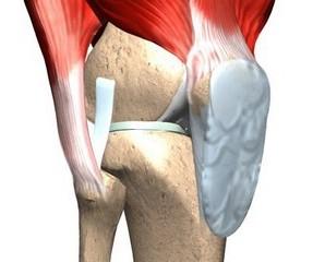 Відновлення хрящової тканини суглобів