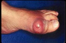 Подагра — що це таке? Симптоми і лікування хвороби | Спину