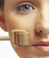 Дермароллер: ефективний засіб для відновлення здоров'я волосся