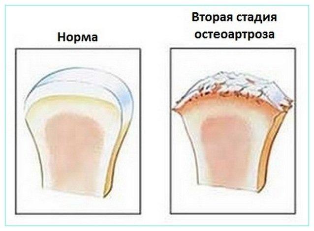 Артроз коленных суставов 2 степени лечение в домашних условиях 643