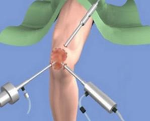 Реабілітація після операції на колінному суглобі