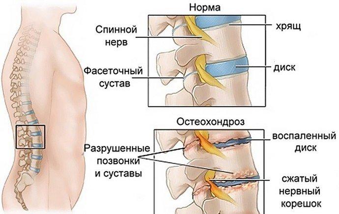 Воспаление остеохондроза лечение