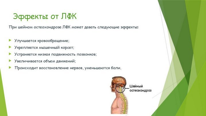 Рефераты по лфк при остеохондрозе