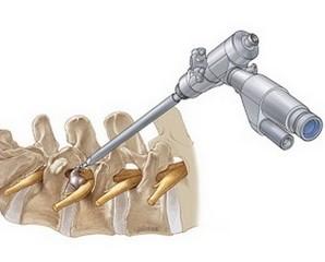 Операції на хребті, вертебропластика