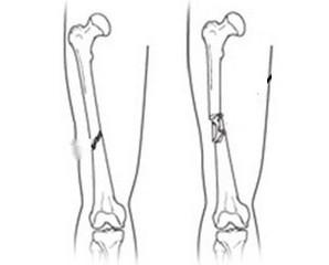 Остеосинтез при переломі стегна: реабілітація