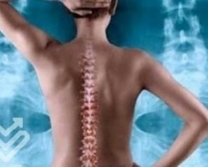 Реабілітація після операції на хребті