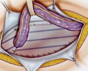 Герніопластика: операції з видалення гриж
