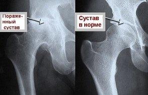 Артрит кульшового сустава мазь скорая помощь для суставов