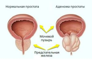 Китайские пластыри для лечения простатита