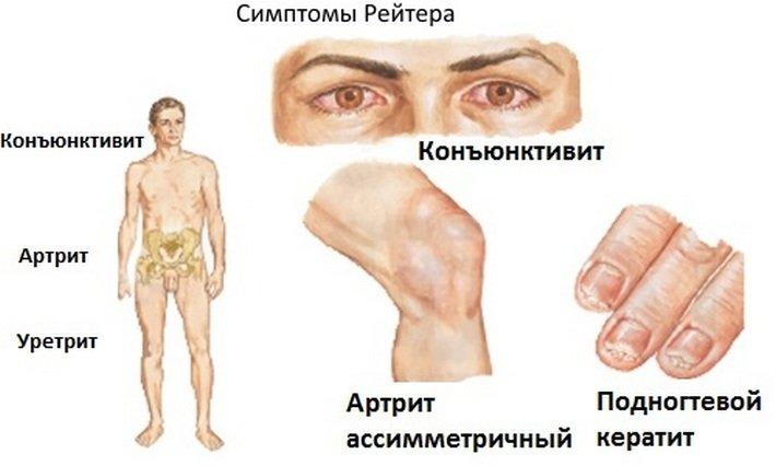 Болезнь рейтера у мужчин симптомы