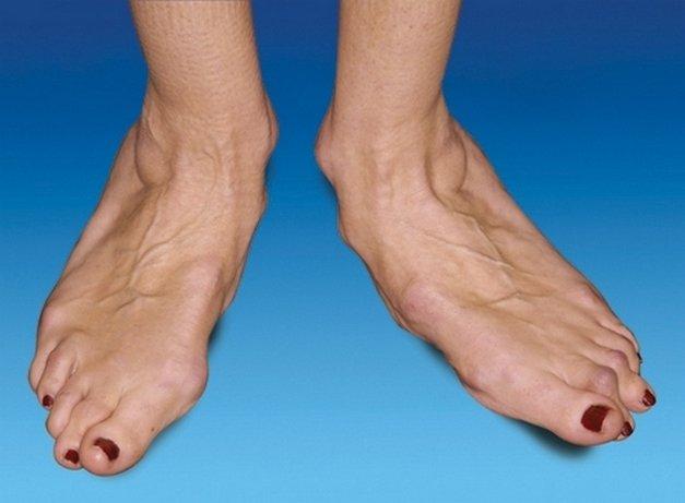 артроз голеностопного сустава симптомы и лечение фото