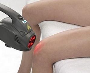 Лазерне лікування суглобів: сучасні методики