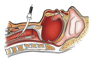 1235ddb85a99a849b85af8fc457c86f9 Конікотомія: показання, проведення, особливості та відмінність від трахеостомії, ускладнення