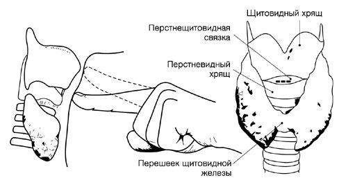 174d3e4ef628ce1b021ab4a0dad568e1 Конікотомія: показання, проведення, особливості та відмінність від трахеостомії, ускладнення