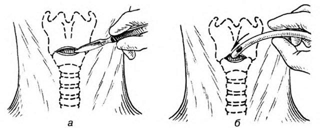 2f6af337b3868032c20207825d0ec53a Конікотомія: показання, проведення, особливості та відмінність від трахеостомії, ускладнення