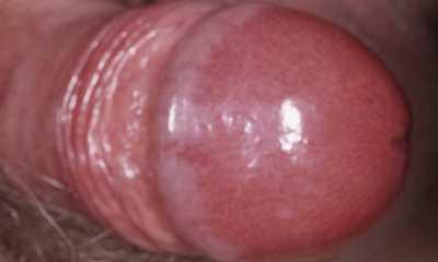 молочниця фото у чоловіків