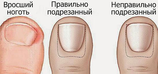 Как размягчить ногти на