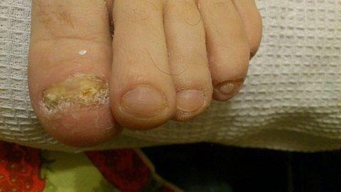 Грибок ногтей врач спб