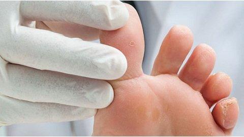 Лечит ли уксус грибок ногтей на ногах
