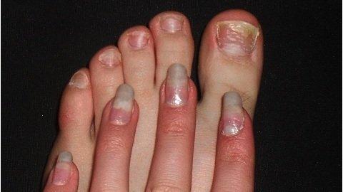 Грибок ногтей на руках что делать