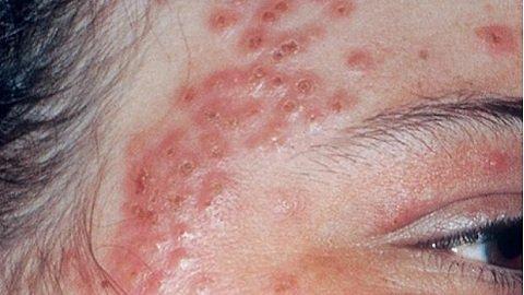 Чим лікувати дерматит на обличчі? Види захворювання Як лікувати