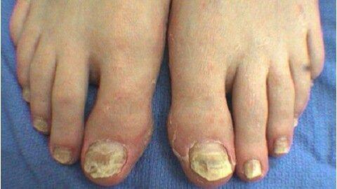 Запущенный грибок на ногтях ног форум