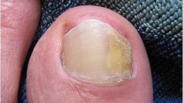 Заболевание ногтей на руках с описанием