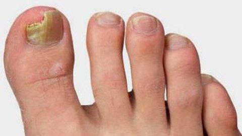 Эффективный способ лечения грибка на ногтях