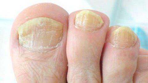 Чем вывести застарелый грибок ногтей на ногах