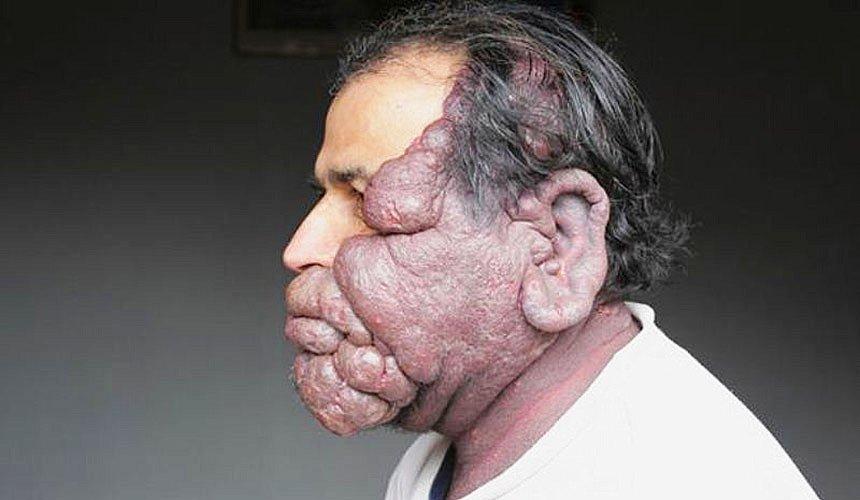 Редкие болезни в картинках