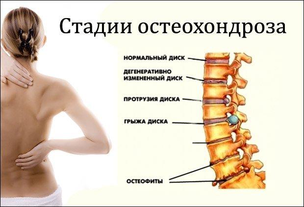 Через сколько времени проходит остеохондроз