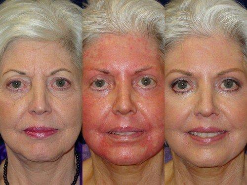 Accutane And Photo Facial