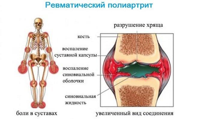 Воспаление крупных суставов летучесть болей