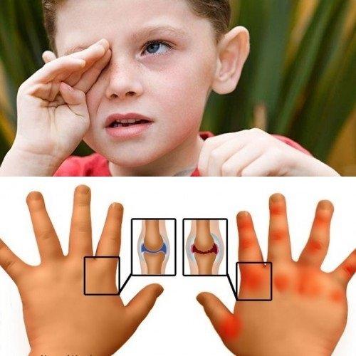 Ювенільний ревматоїдний артрит у дітей: лікування, причини ...