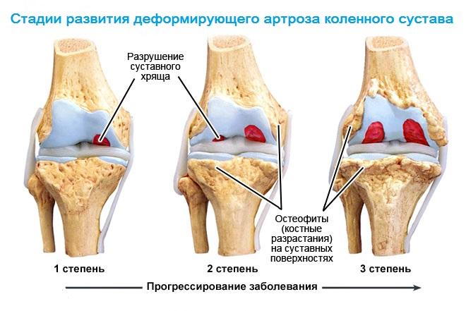 Артроз болезнь суставов лечение