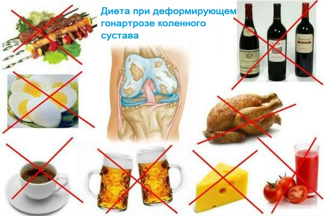 Питание при гонартрозе 3 степени