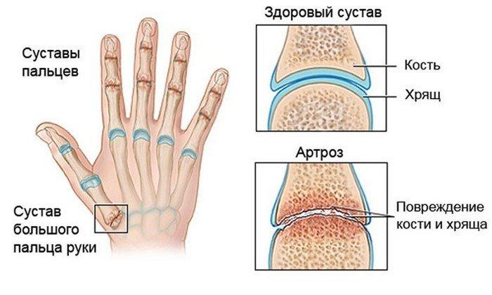 боль сустава большого пальца