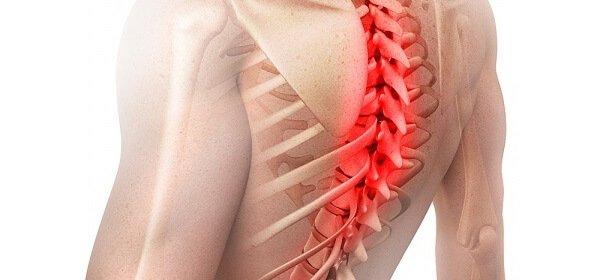 Болит позвоночник в грудном отделе слева